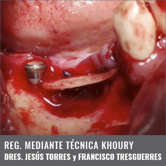 Caso clínico Dres. Jesús Torres y Francisco Tresguerres