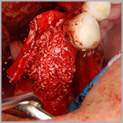 Caso clínico Dr. Daniel Castilla