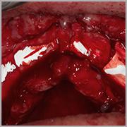 Caso clínico Dr. Mario Alvarado