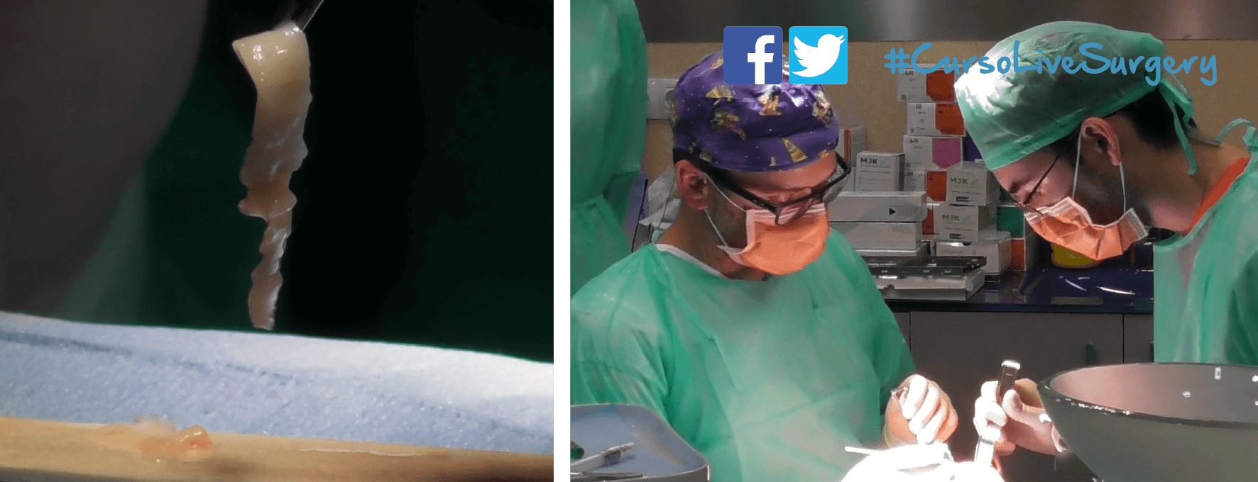 CirugiasEnDirecto