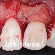 Membrana OsteoBiol Derma. Dra. Leticia Sala