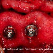 Membrana Derma