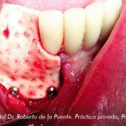 Membrana Derma Dr Roberto de la puente