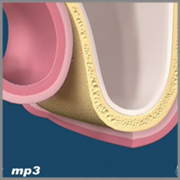 OsteoBiol Mp3