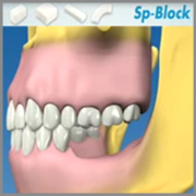 OsteoBiol Sp-Block
