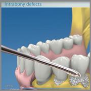 Regeneración periodontal