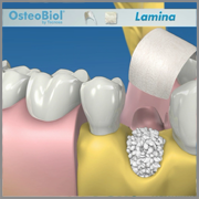 OsteoBiol Lámina