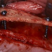 Lámina cortical rígida. Dr. Antonio Murillo