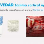 Novedad: Lámina cortical rígida