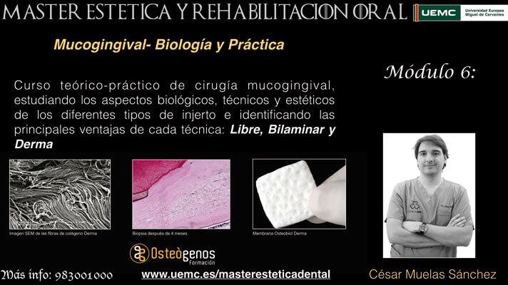 Máster en estética y Rehabilitación oral