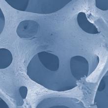 Resumen científico OsteoBiol