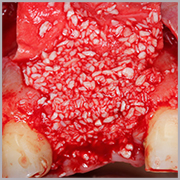 Caso clínico Dr. Alfonso Sande