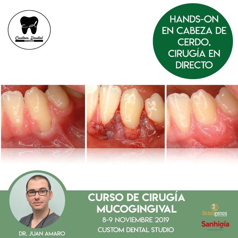 Curso cirugía mucogingival Dr. Juan Amaro