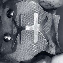 Membranas PTFE y mallas de titanio